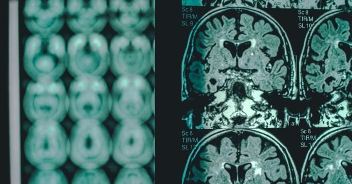 The FDA's big Gamble on the new Alzheimer's Drug