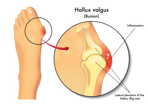 small resolution of bunions
