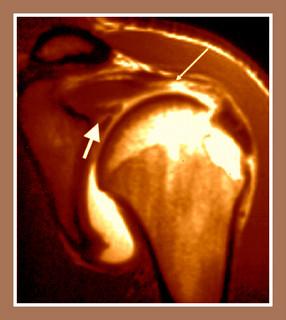 Dolor de hombro por la noche (III)