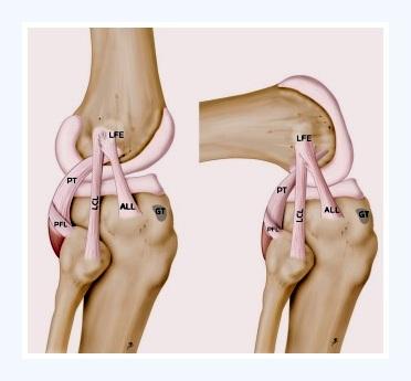 Un nuevo ligamento en la rodilla - Carlos López Cubas