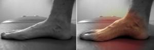 ejercicio de pie corto osteon alaquas carlos lopez cubas