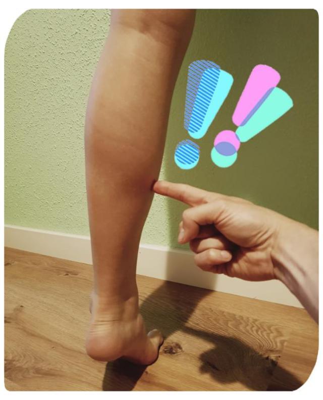 rotura del gemelo pierna de tenis Carlos López Cubas osteon