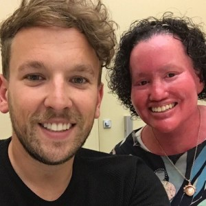 Carly Findlay and Dylan Alcott. Image: two people smiling at the camera.. One is male and has light brown hair and a beard. The other is female and has a red face and short curly dark hair.