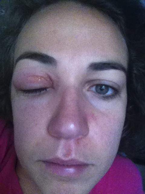 Poison Ivy Around Eye Treatment