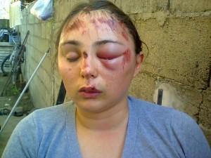 Así quedó Lorena Cuello al caer del ciclomotor. (Foto: Miguel Guaraglia.)
