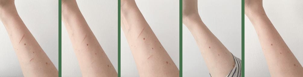 creme-efficace-cicatrice