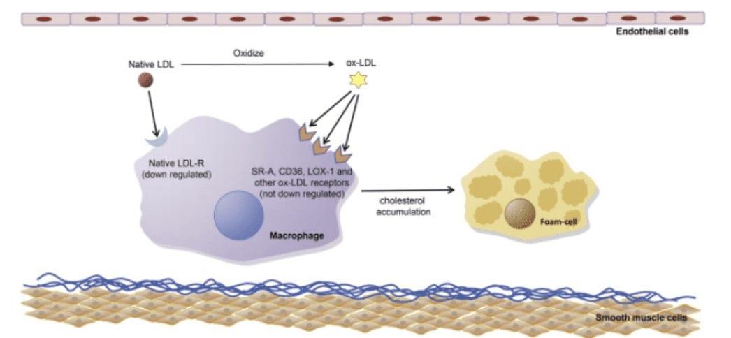 Normal vs Damaged LDL Cholesterol