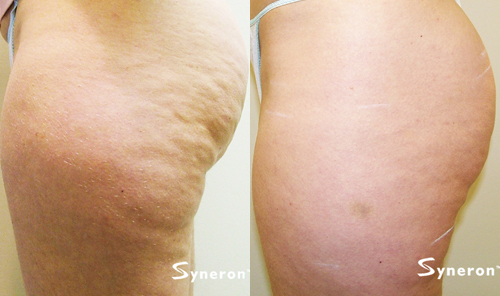 A side view before and after photo of a woman who has now smoother and tighter skin