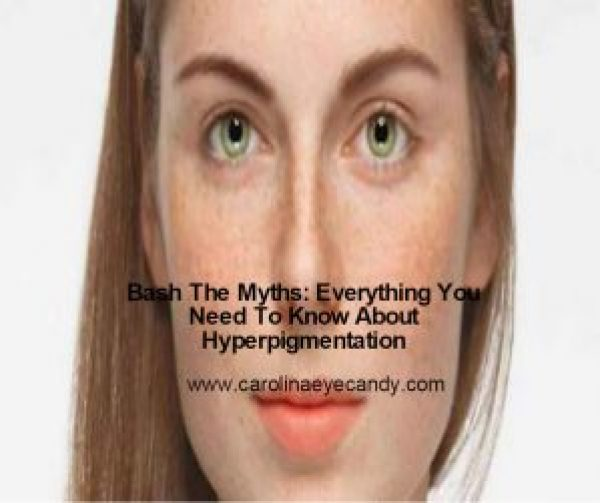 what is hyperpigmentation