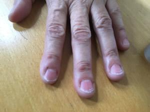 carolyn-bitten-nails-350wide.jpg