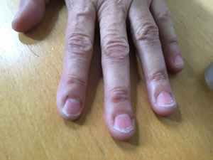 carolyn-bitten-nails-350wide.jpg