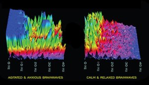 Brainwaves when you're calm and when you're anxious
