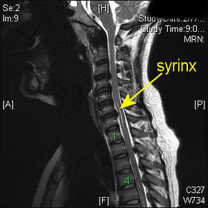 MRI C spine T2 Syrinx