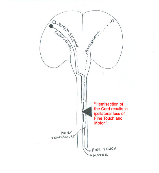 Brown-Sequard Syndrome: Hemisection of the Cord | Neurosurgery Basics