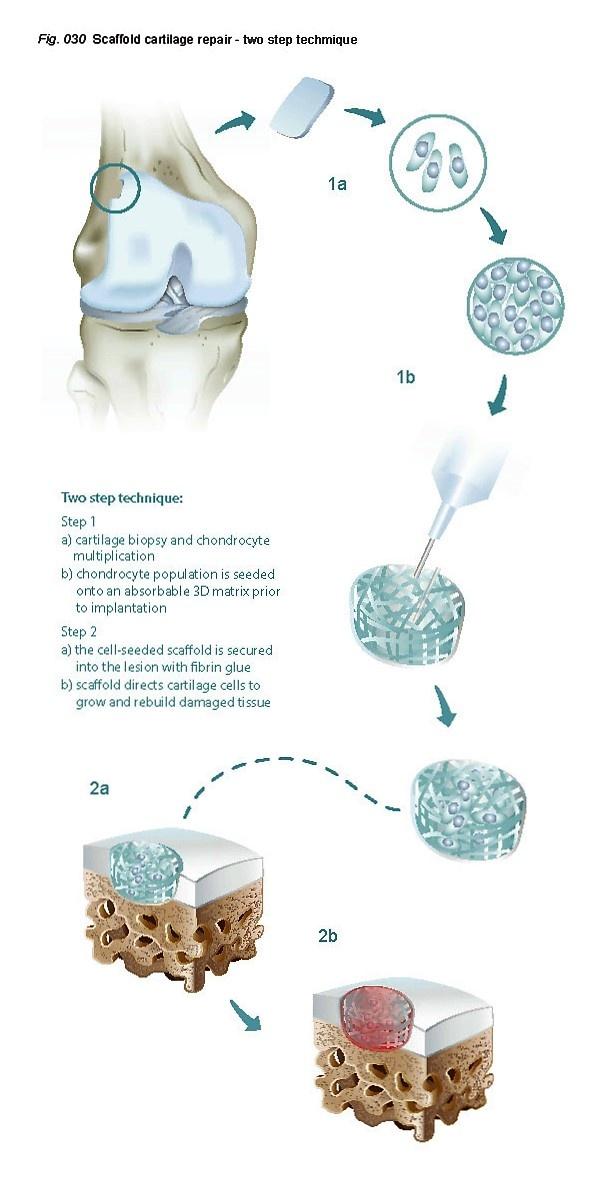Image result for cartilage scaffold transplant