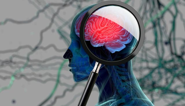 cerebro cranio alzheimer 0817 1400x800