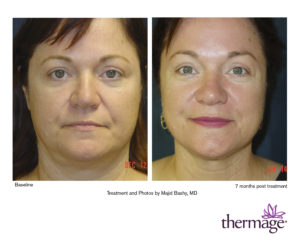Thermage Orlando Full face treatment by Majid Bashy, MD. Pre and 7 months post. 1.5cm tip, 450 Reps