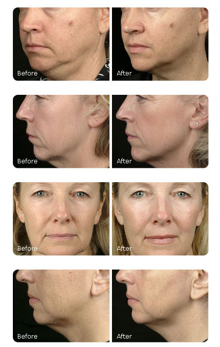 Ultherapy Vs Thermage for Skin Tightening – Pros and Cons | Cascades