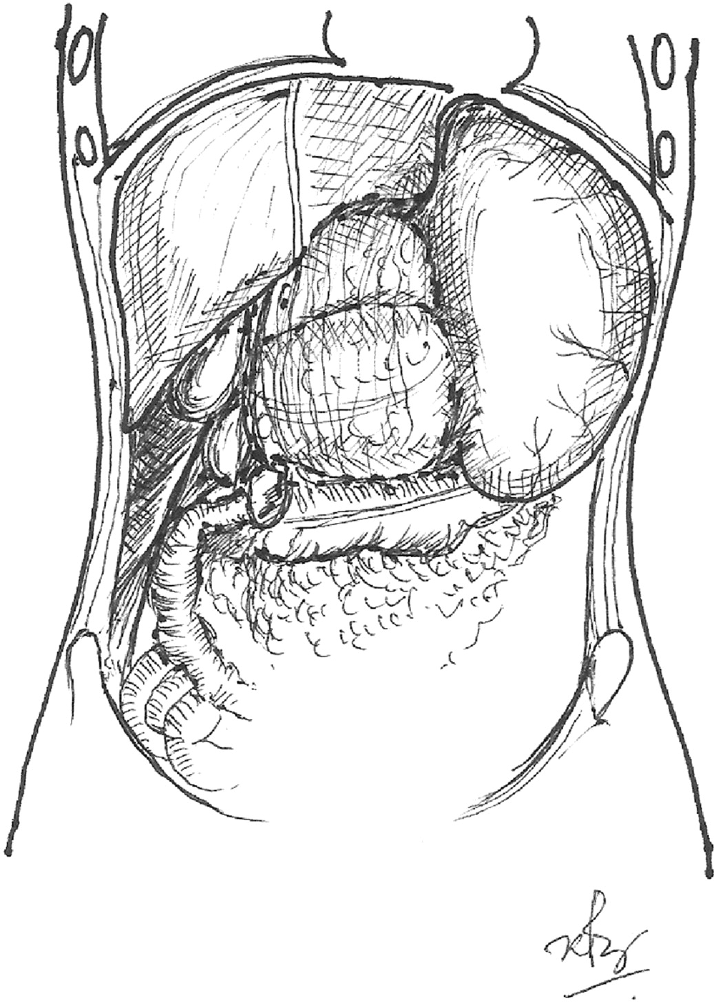 Gastric Outlet Obstruction From A Caecal Volvulus