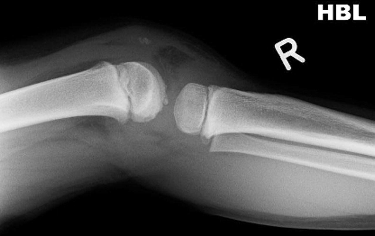 Paediatric Intrasubstance Posterior Cruciate Ligament Rupture