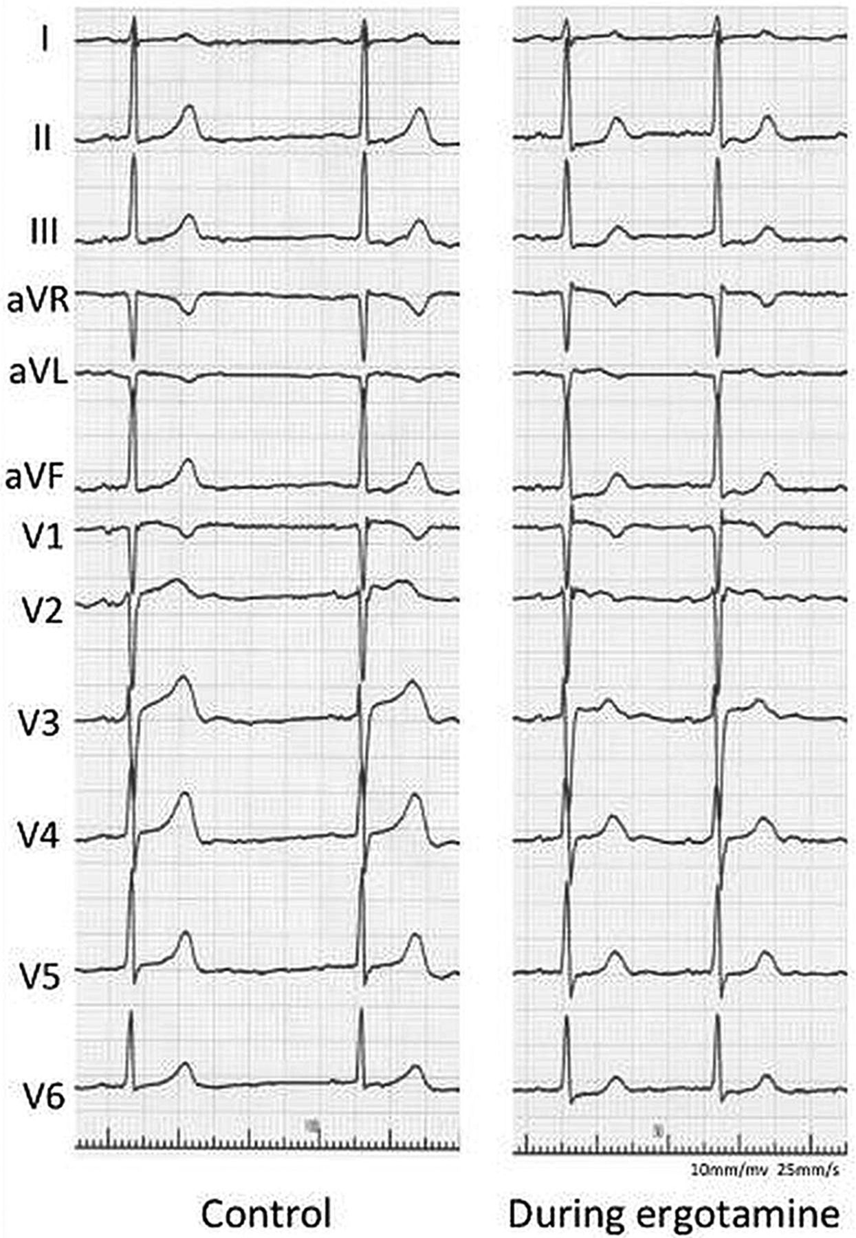 Coronary Spasm As The Cause Of Myocardial Ischaemia In A Patient With Anomalous Origin Of The