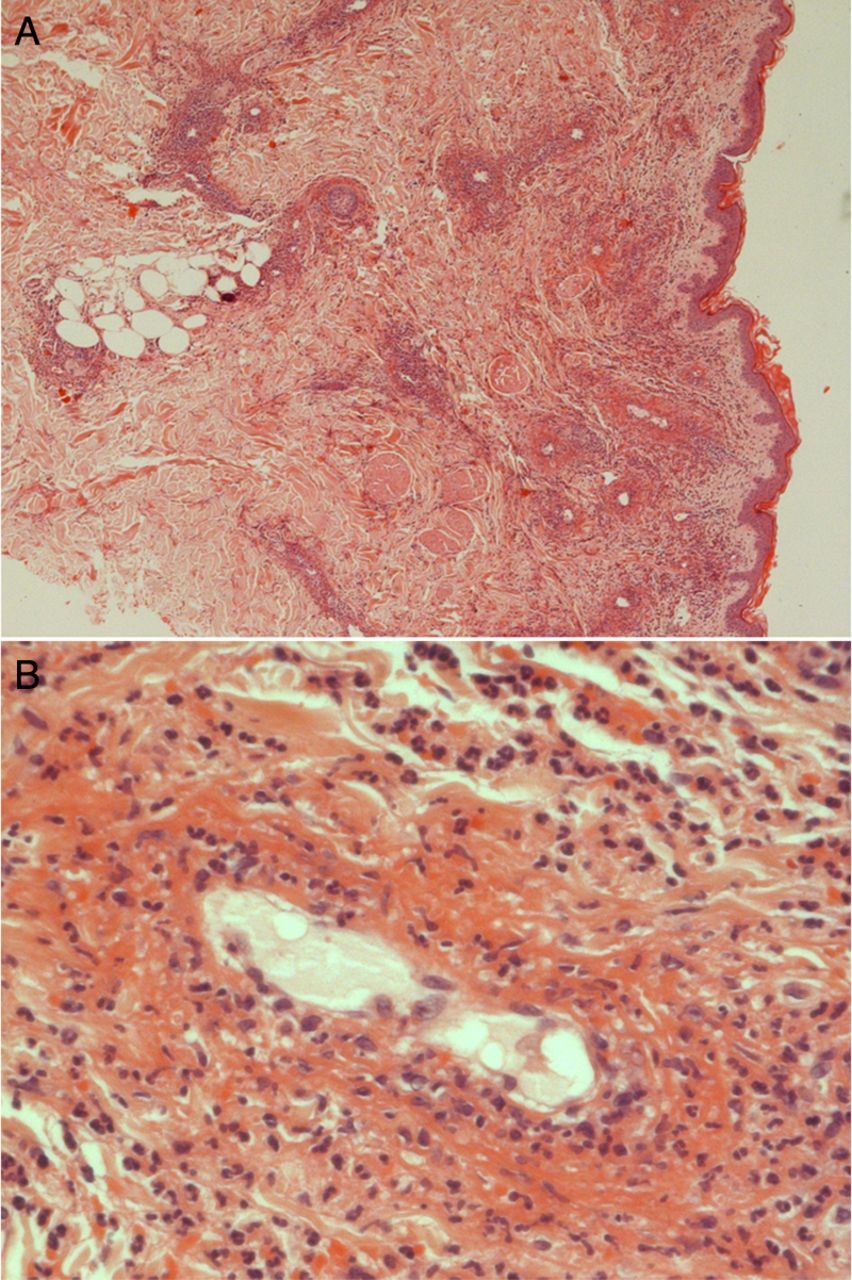 Florid urticarial vasculitis heralding a flare up of ...