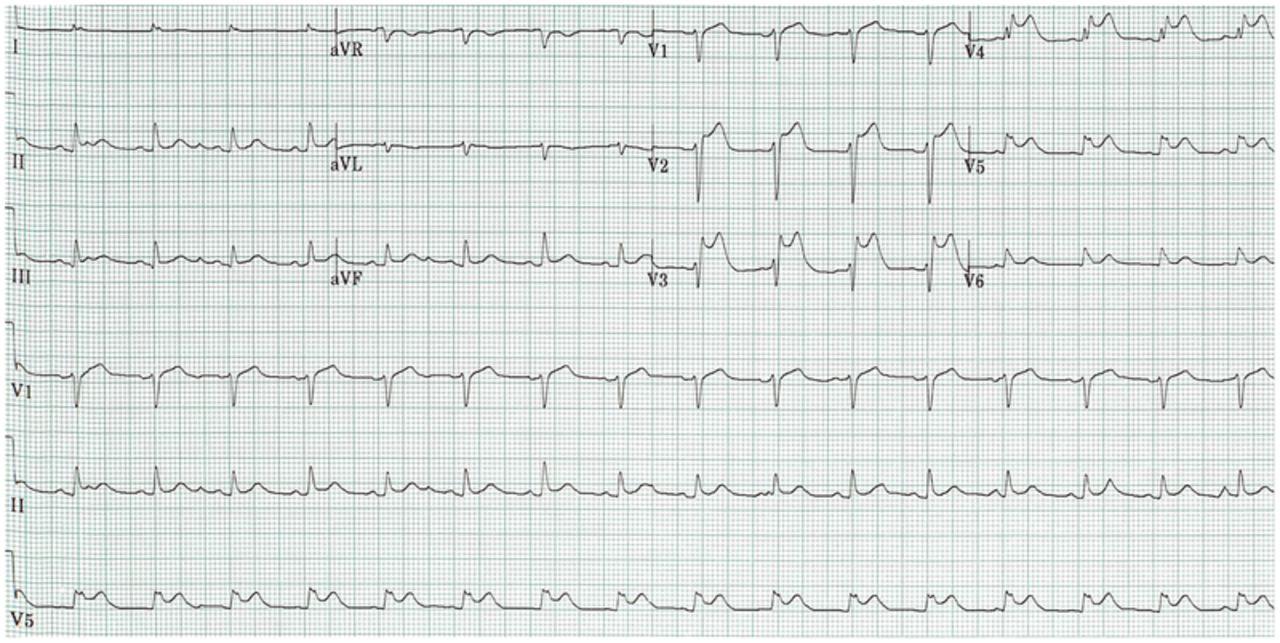 A case of ST elevation myocardial infarction immediately