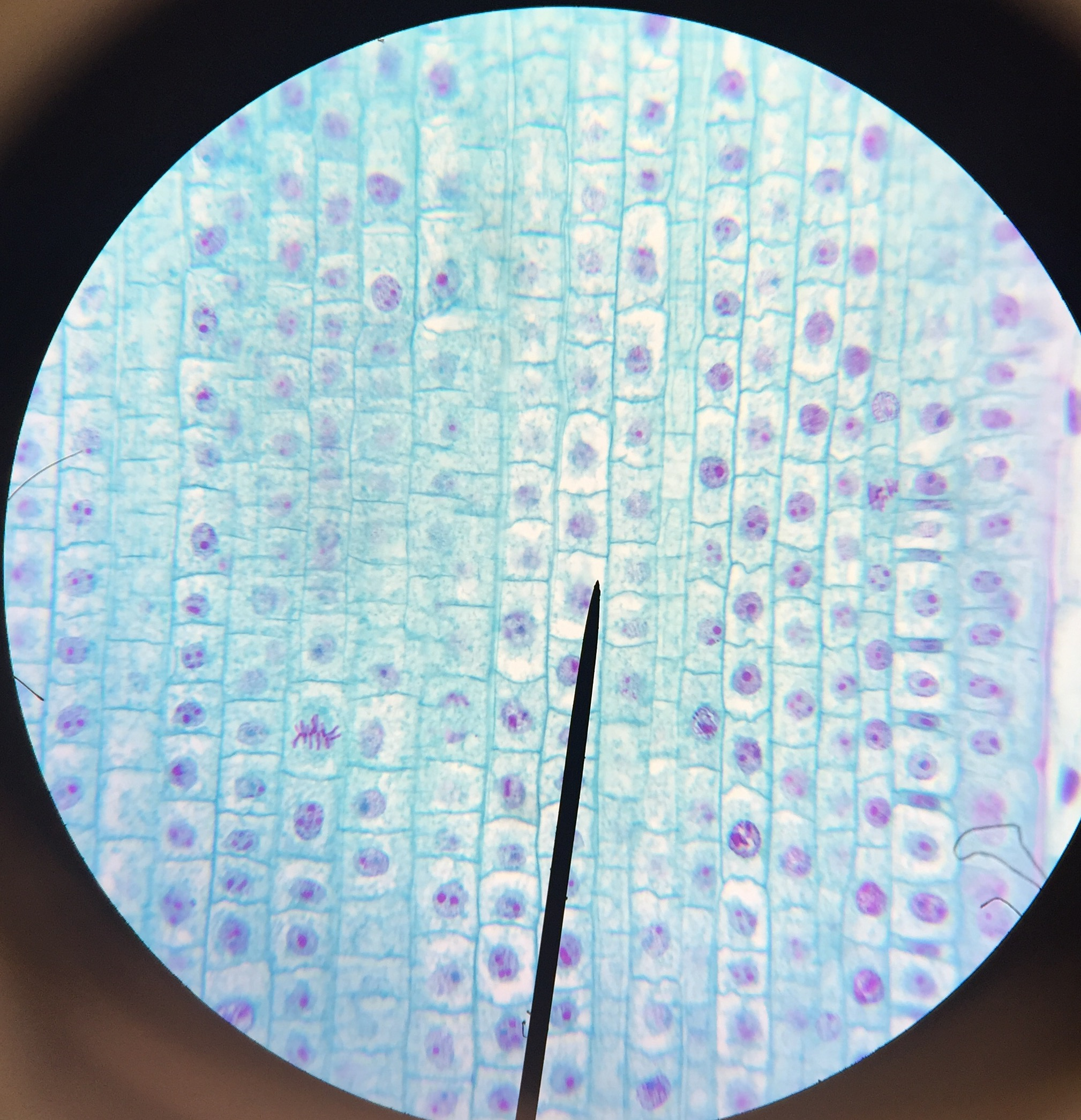 Mitosis Online Onion Root Tip Lab Cassidy Cant Come Up