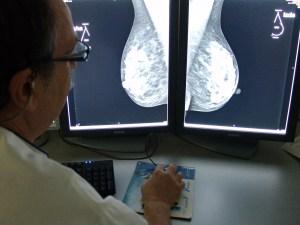 mamografia2