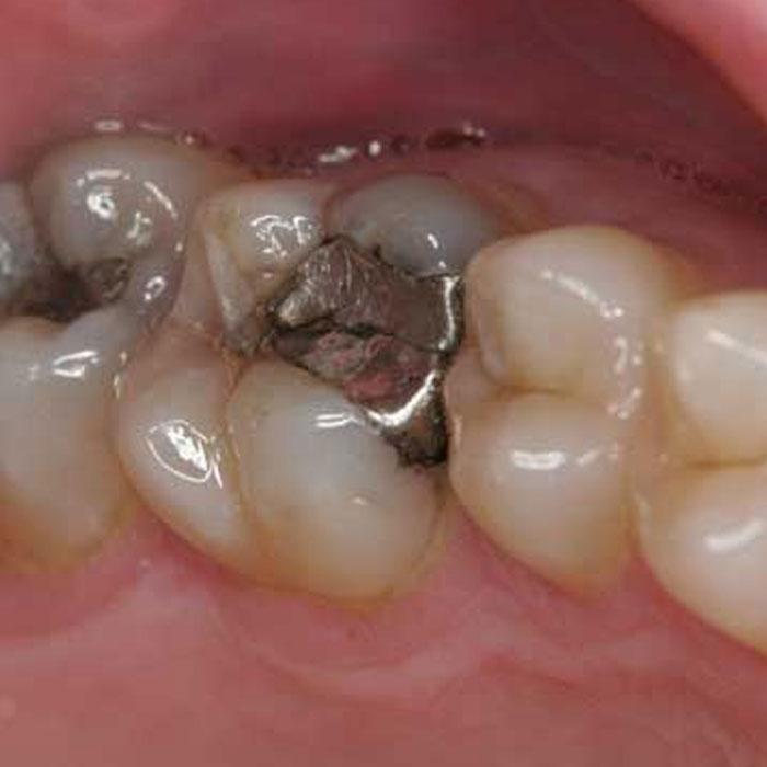 Amalgam Fillings  Castlebawn Dental Practice Ltd