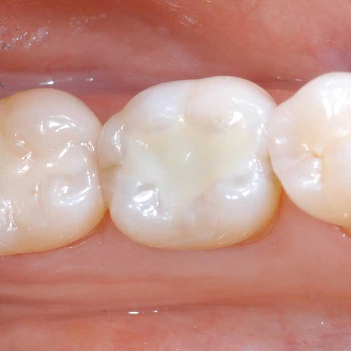 White Fillings  Castlebawn Dental Practice Ltd
