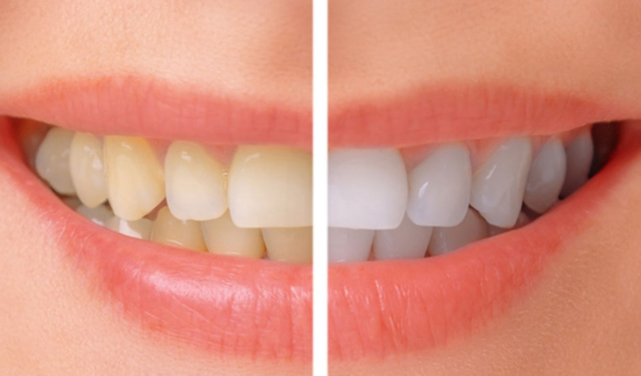 Teeth Whitening  Castlebawn Dental Practice Ltd