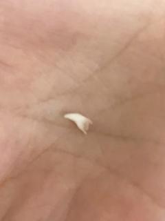 くーちゃんの歯