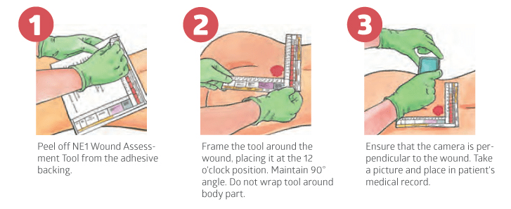 wound assessment diagram s13 sr20det ecu wiring ne1 tool medline industries inc