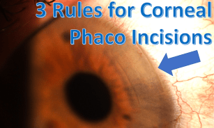 3 rules K incision
