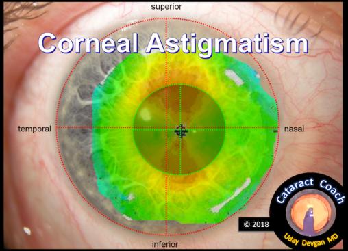 corneal astig