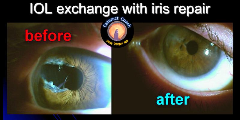 IOLx with Iris repair