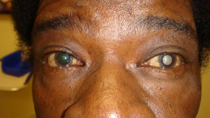 unilateral white cataract small