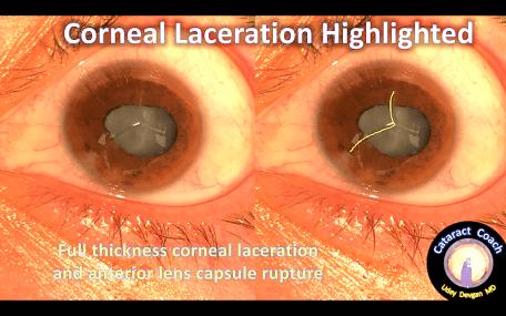 corneal lac2