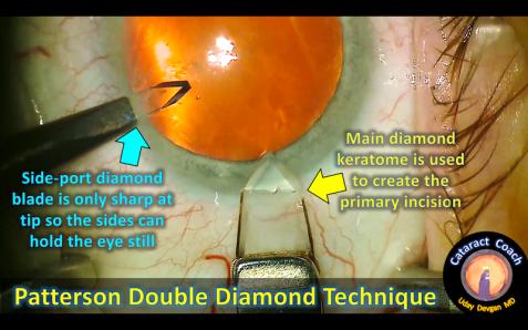 double diamond keratome