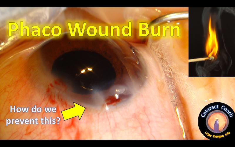 phaco wound burn before title
