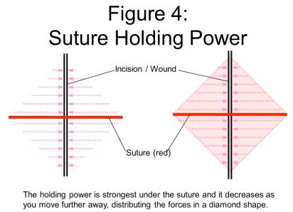 suture 4