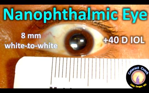 tiny eye title
