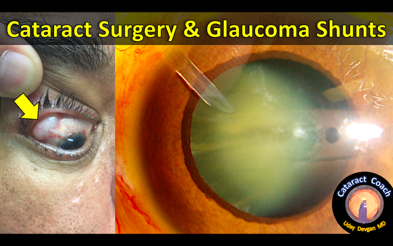 ahmed valve cataract title