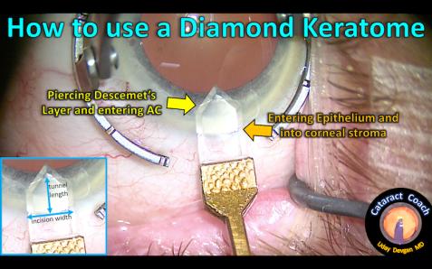 diamond ker dimensions