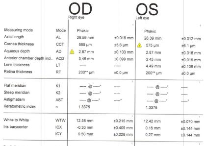 prior RK - biometry