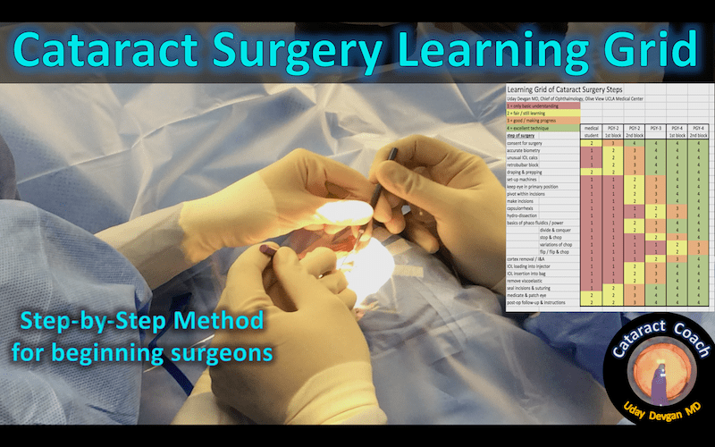 Cataract Surgery Learning Grid – Cataract Coach