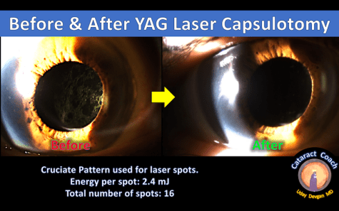 YAG laser before and after
