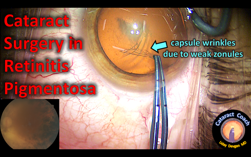 cataract and RP title