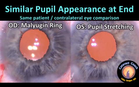 pupil comparison at end 132